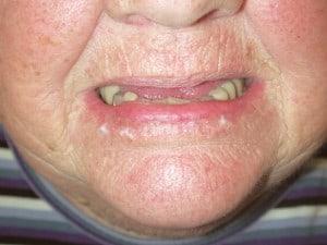 Cheilitis Causes