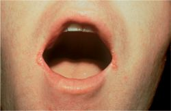 Treatment Cheilitis